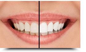 Datenschutz Zahnarzt Bayreuth